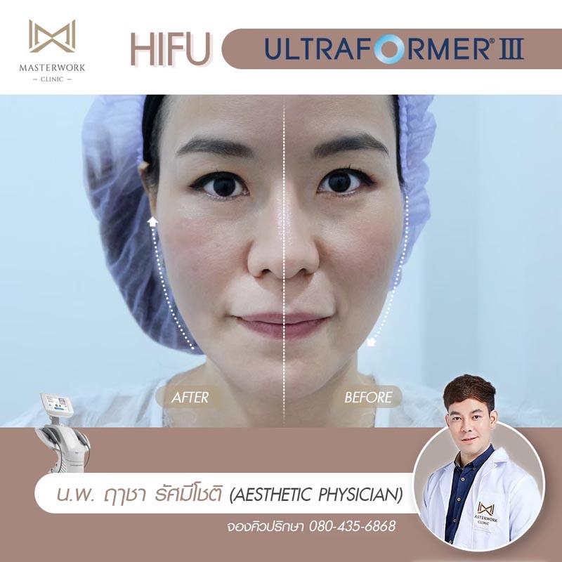 รีวิว hifu ultraformer iii โปรโมชั่น hifu Masterwork clinic4