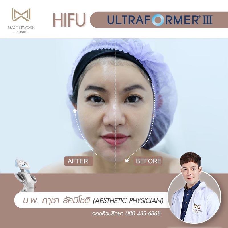 รีวิว hifu ultraformer iii โปรโมชั่น hifu Masterwork clinic5