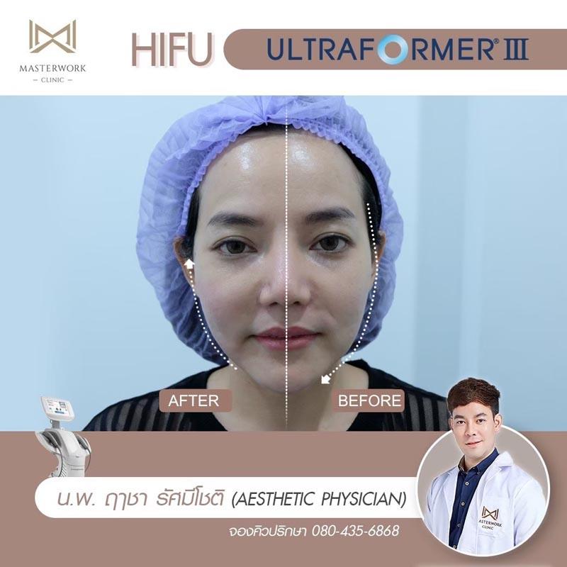 รีวิว hifu ultraformer iii โปรโมชั่น hifu Masterwork clinic6