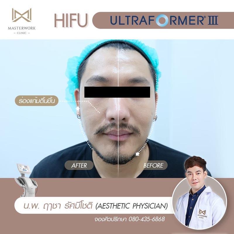 รีวิว hifu ultraformer iii โปรโมชั่น hifu Masterwork clinic9