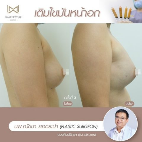 เติมไขมันหน้าอก ฉีดไขมันหน้าอก เสริมหน้าอก masterwork clinic00003