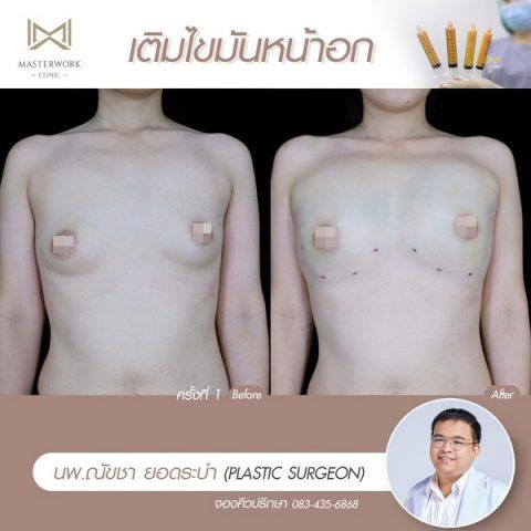 เติมไขมันหน้าอก ฉีดไขมันหน้าอก เสริมหน้าอก masterwork clinic00004
