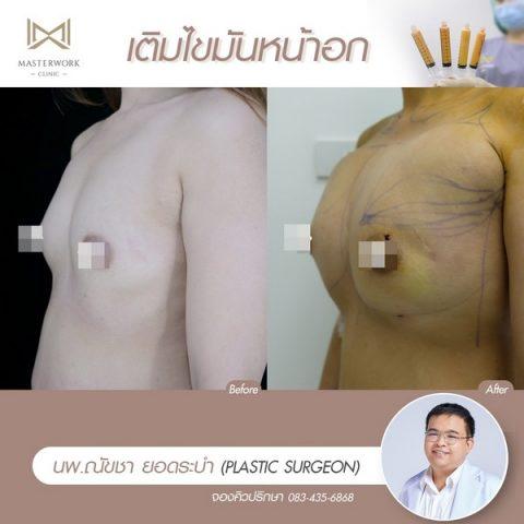 เติมไขมันหน้าอก ฉีดไขมันหน้าอก เสริมหน้าอก masterwork clinic00008