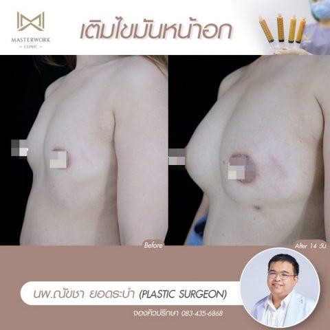 เติมไขมันหน้าอก ฉีดไขมันหน้าอก เสริมหน้าอก masterwork clinic00011
