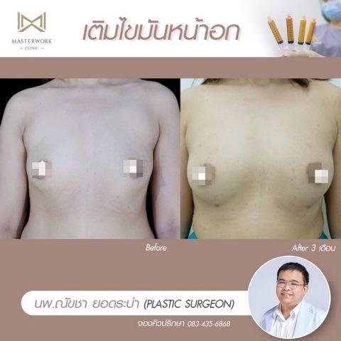 เติมไขมันหน้าอก ฉีดไขมันหน้าอก เสริมหน้าอก masterwork clinic00013