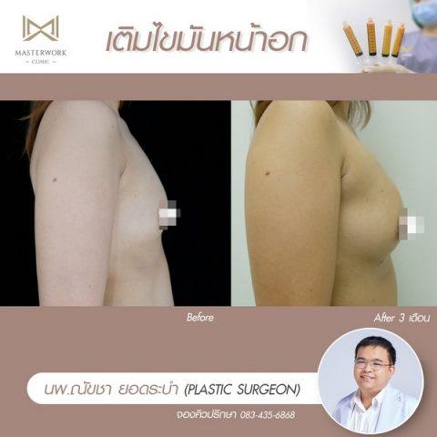 เติมไขมันหน้าอก ฉีดไขมันหน้าอก เสริมหน้าอก masterwork clinic00014